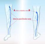 Varikozne vene i njihova prevencija